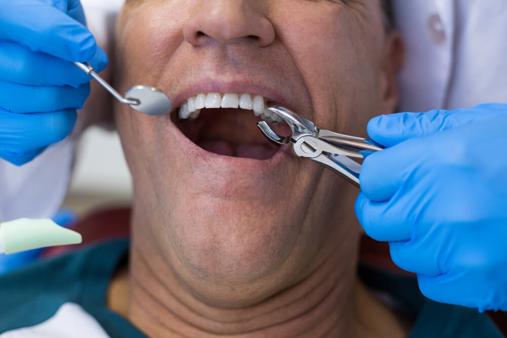 Wisdom Tooth Extraction Dentist