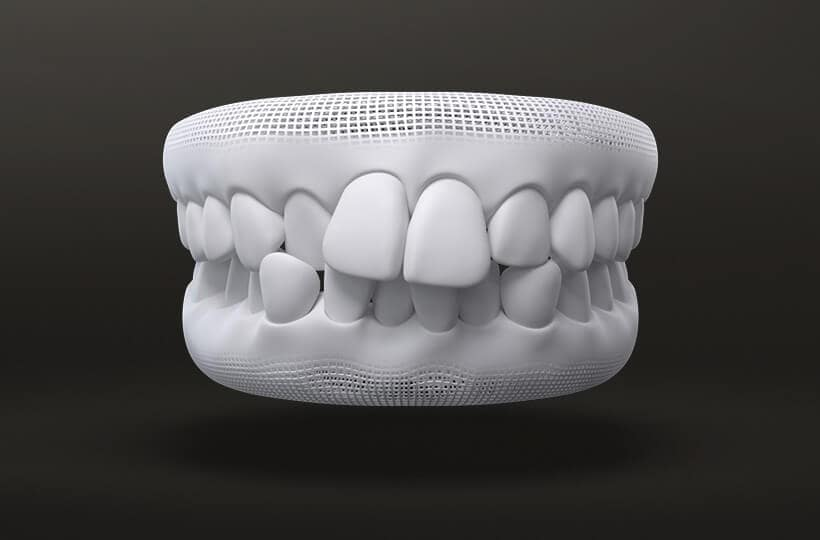 Crowded Teeth Treatment with Invisalign