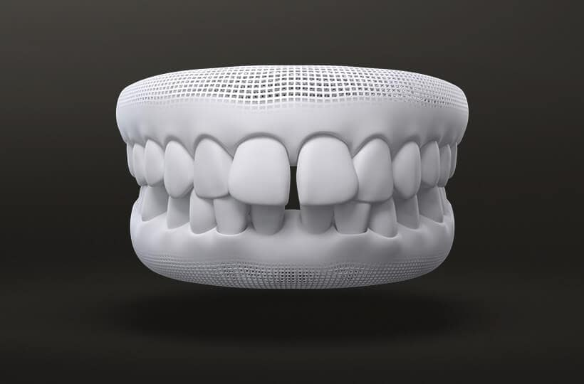 Gapped Teeth Treatment with Invisalign