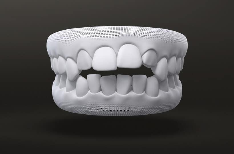 Open Bite Treatment with Invisalign