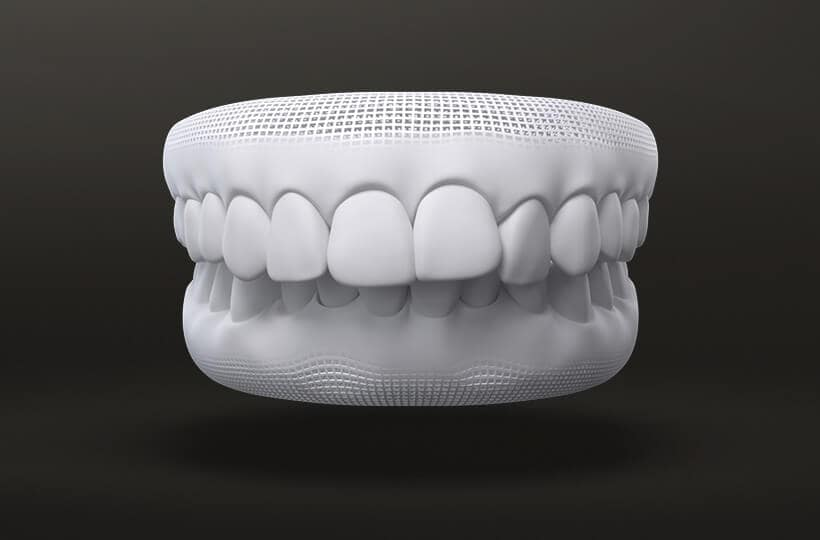 Over Bite Treatment with Invisalign